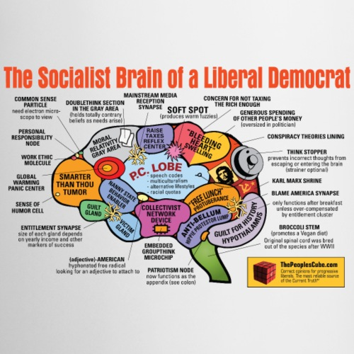 Brain of a socialist